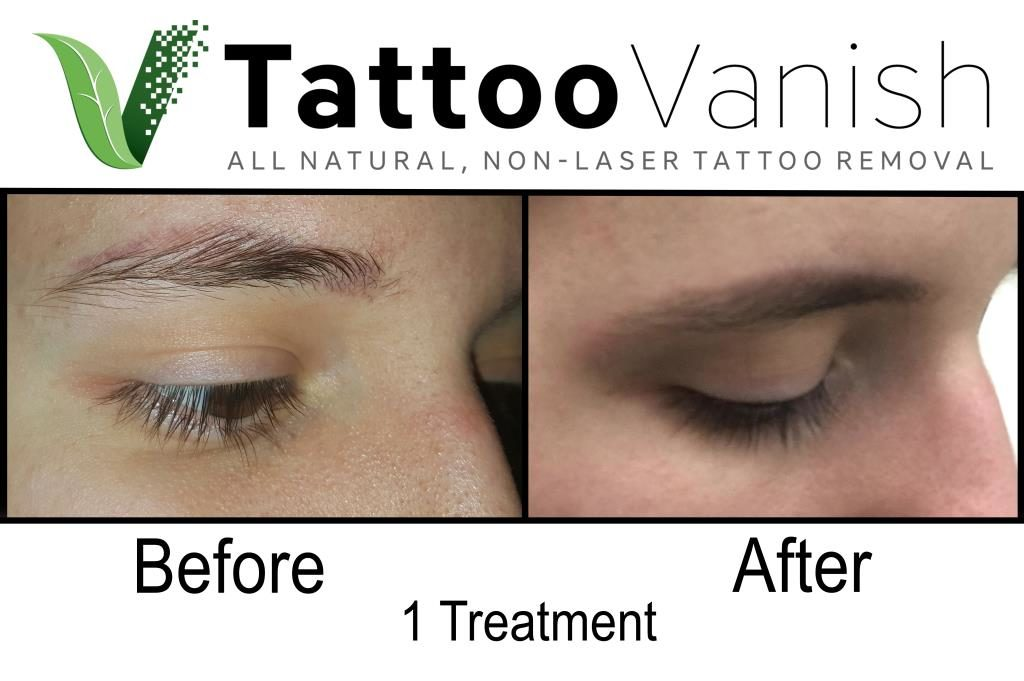 Before And After Tattoo Removal Get The Best Results The All