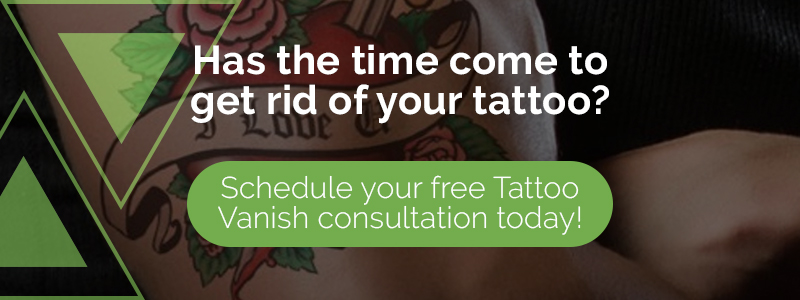 Has the time come to get rid of your tattoo?