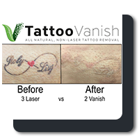 Tattoo Vanish Method is less painful.