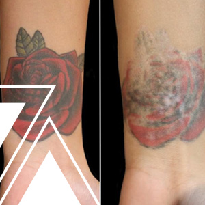 Tattoo Removal Training Why You Should Get Certified In The Tattoo