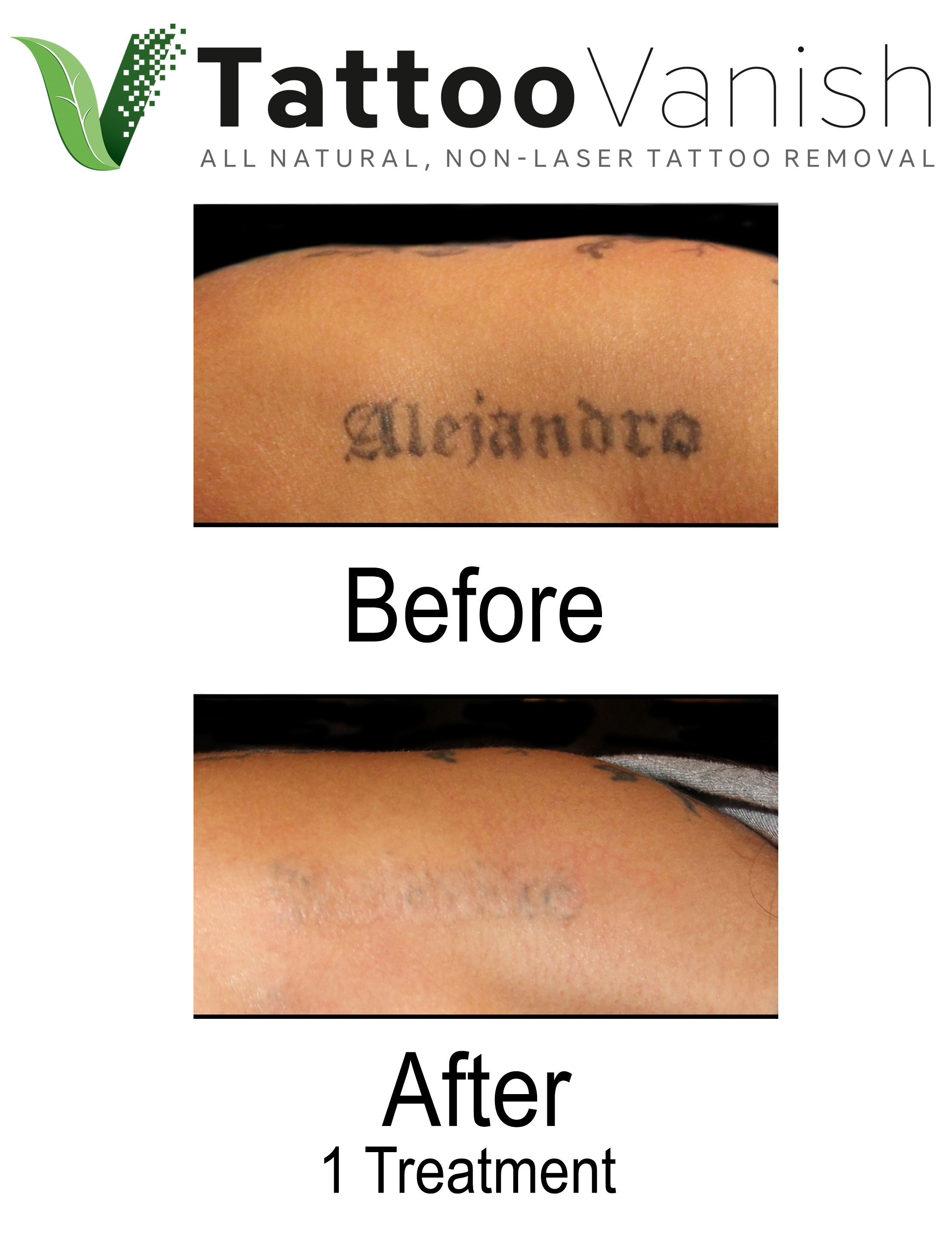 Before and after tattoo vanish procedure.