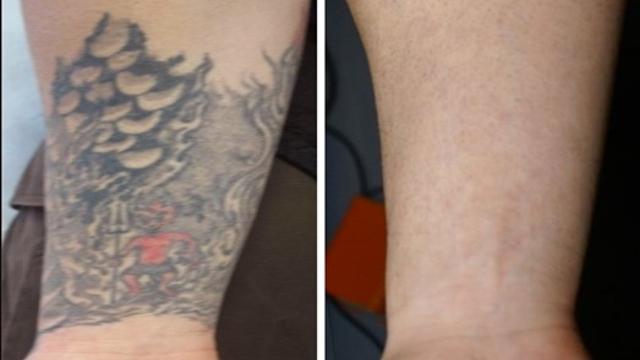 Tattoo removal school
